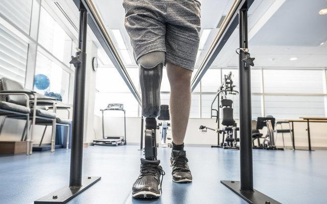 ابزاری که مسائل پروتز پا را شناسایی می نماید